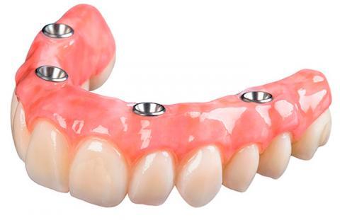 Зубы по технологии all-on-4